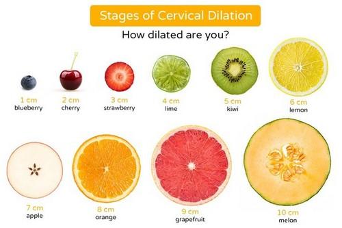 Cervical dilation