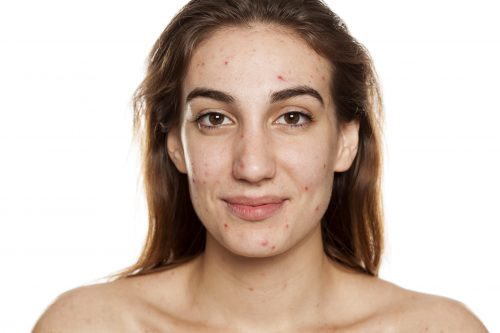 Woman with acne smiling at camera