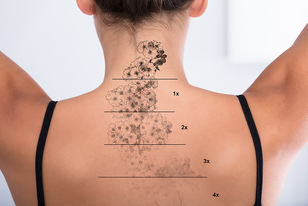 Hate Your Tattoo? What You Need To Know About Tattoo Removal